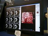 ICP's medical LCD monitor